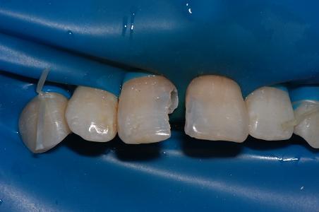 前牙美容--纳米树脂修复(3)